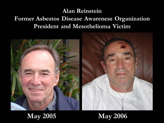 Alan Reinstein